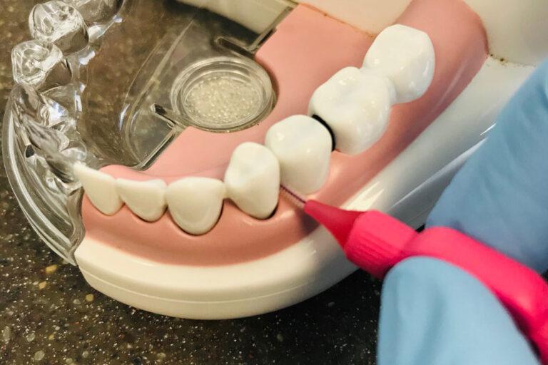 Verwendung Zahnseide Zahnarzt Paderborn